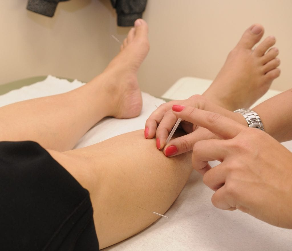 Acupuncture for heel pain by a podiatrist
